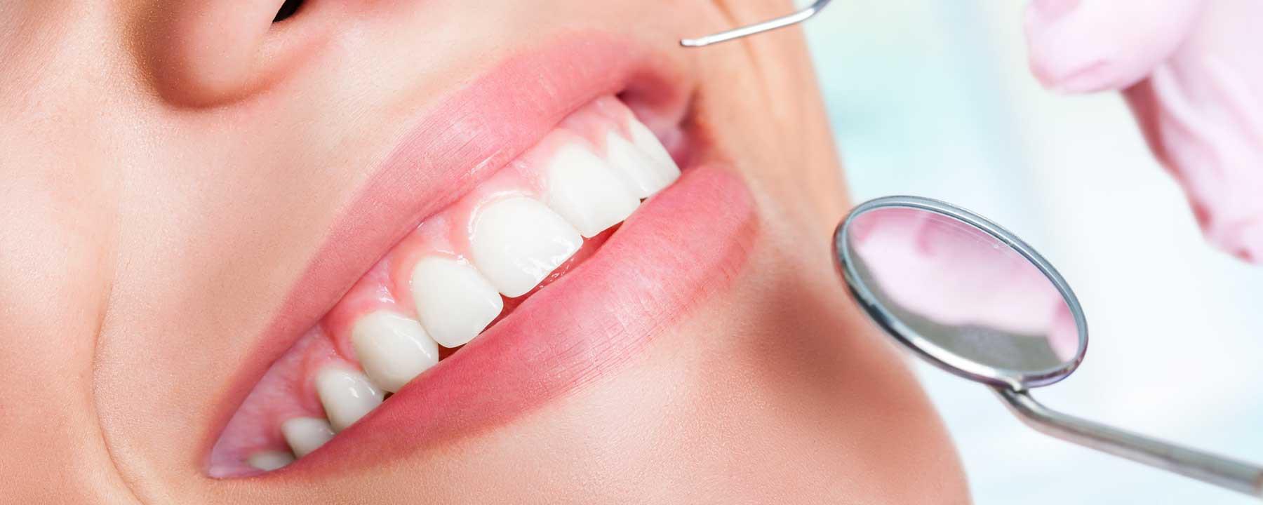 affordable straight teeth