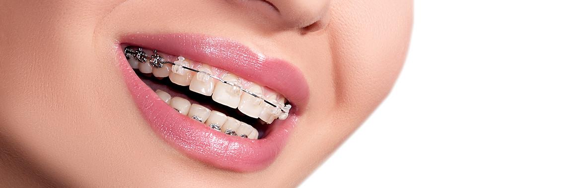 save on straight teeth