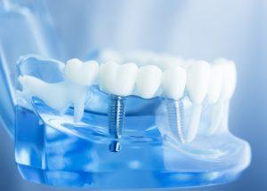 Philadelphia Dental Implants