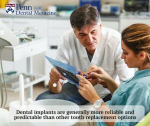 dental implants process