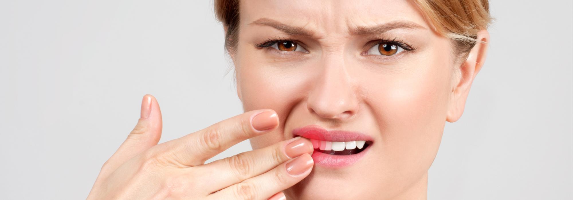 Repair-Chipped-Teeth
