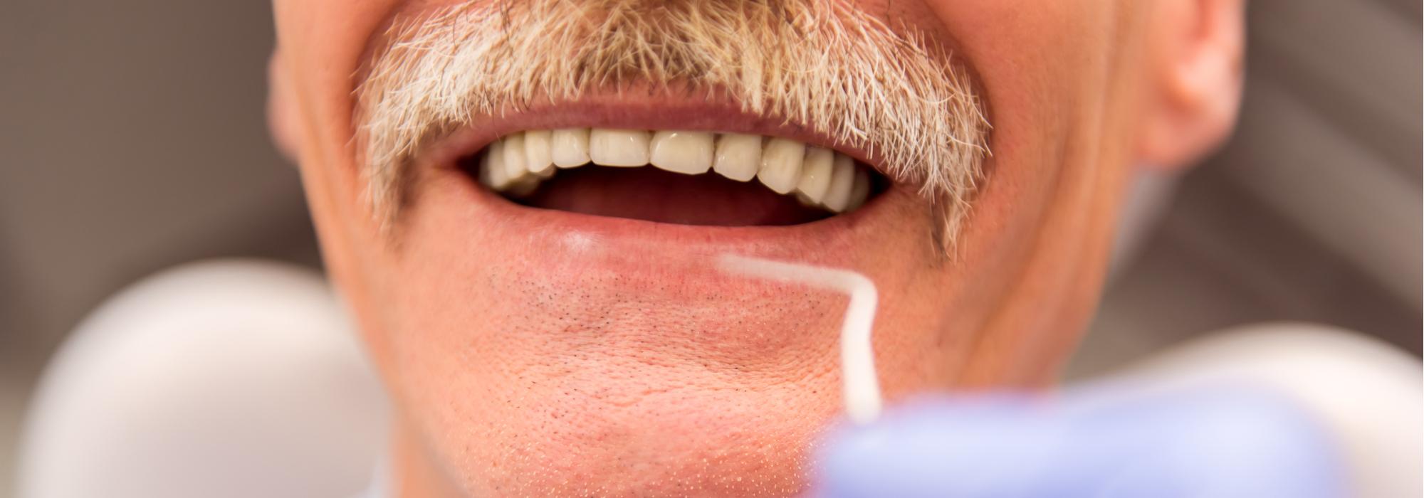snap-in dentures cost