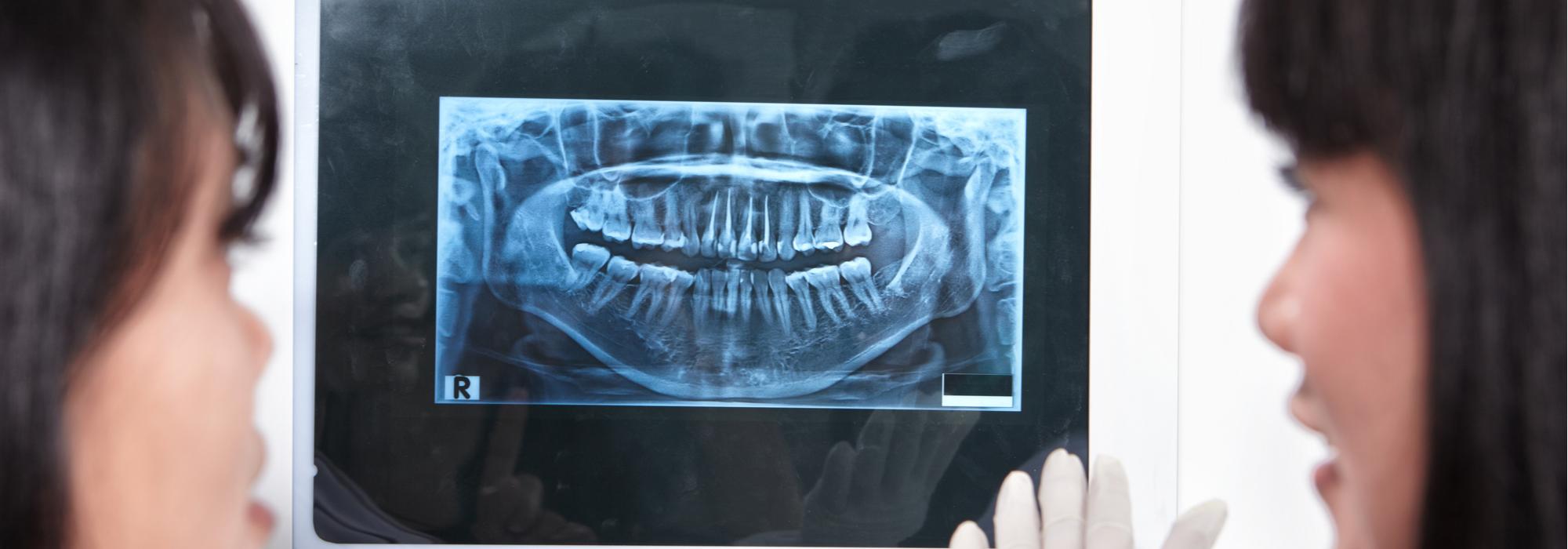 dental prosthodontics